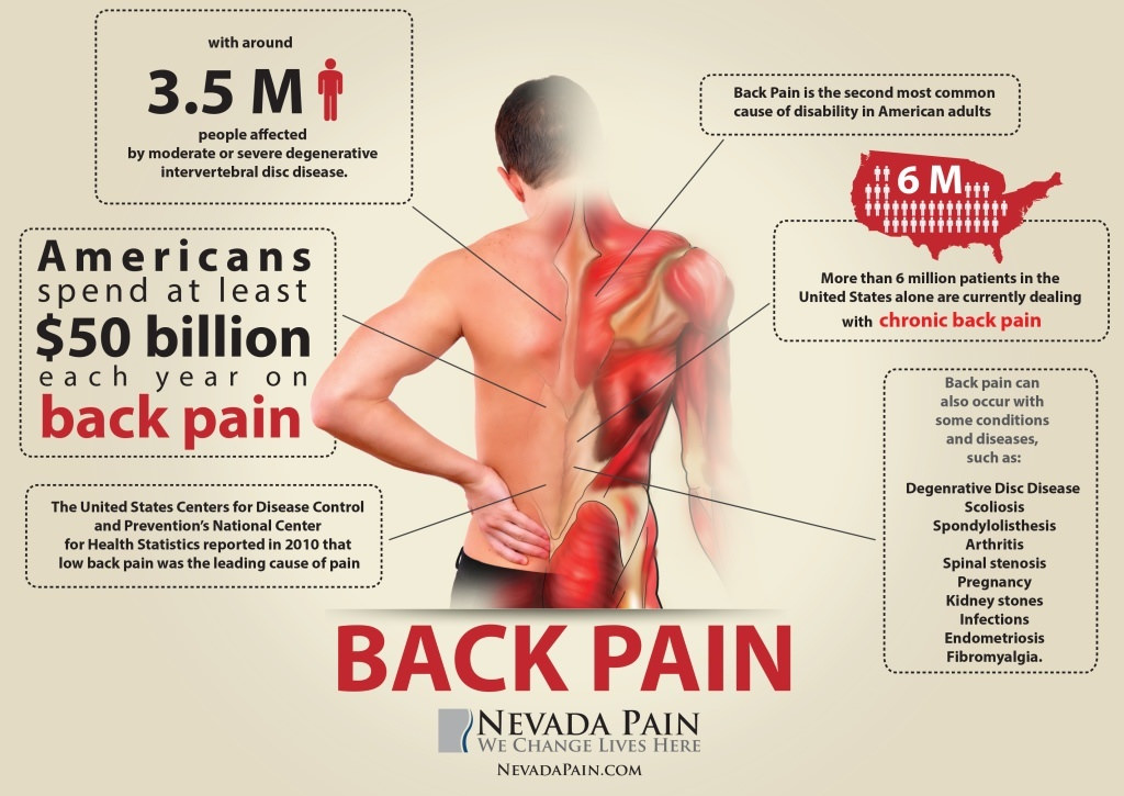Back Pain info